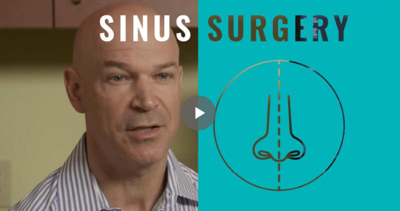 General Sinus Procedures